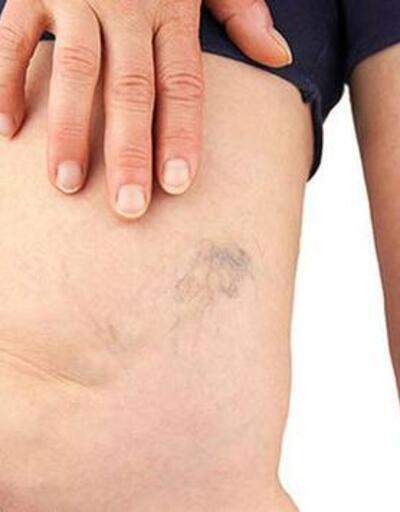 Ameliyatsız varis tedavisi mümkün