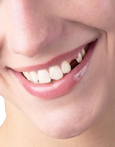 Dişlerde oluşan eksiklikler kaderiniz olmasın