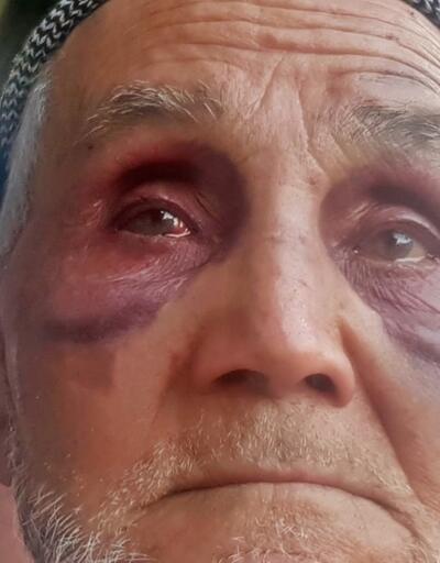 Babasını satırla dövdü