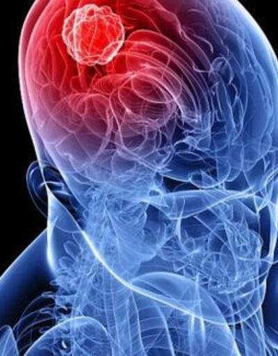 Bu cihazlar beyin tümörü riskini artırıyor