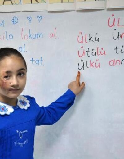 Varil bombasıyla yaralanan Suriyeli iki kardeş, Türkiye'de mutlu