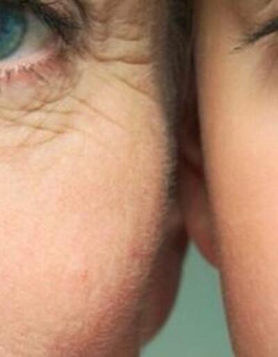 Gençleşmenin sırrı: Ameliyatsız iple yüz germe