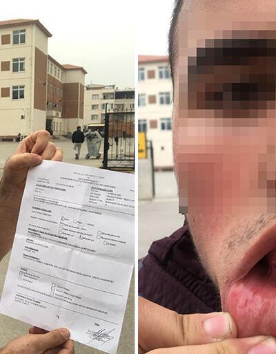 Öğretmen soru soran öğrencisini dövdü iddiası