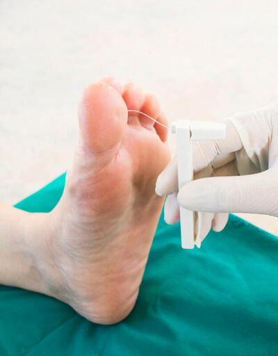 Diyabetik ayaklara ağrısız çözüm