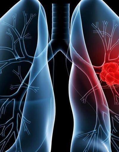 Ana caddelerdeki hava kirliliği akciğer gelişimine ket vuruyor