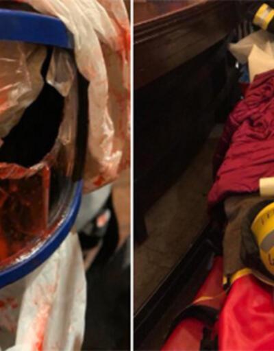 Fransa'da gösterilerde gözünden yaralanan AA Foto Muhabiri MustafaYalçınameliyat oldu