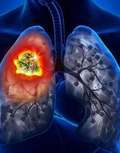 Akciğer kanseri hastalarının ömrü uzuyor