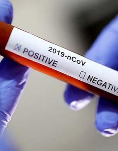 Covid-19 corona virüsü belirtileri neler? Gün gün koronavirüs belirtileri