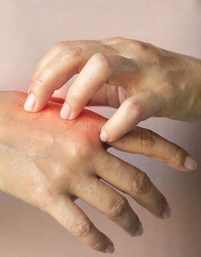 Su ve dezenfektan sebebiyle kuruyan ellerinizi iyileştirin