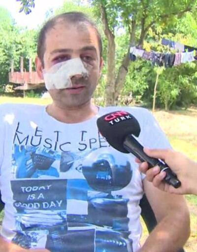 Sakarya'daki patlamadan yaralı kurtulan işçi dehşet anlarını anlattı | Video