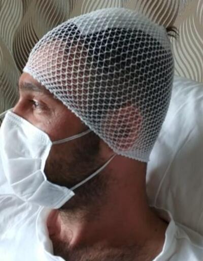 Başına yorgun mermi isabet etti | Video