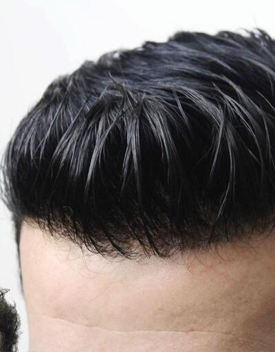 Kemoterapide protez saç kullanımının kolaylıkları