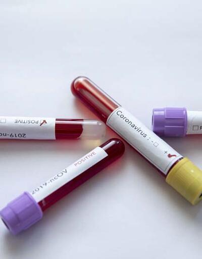 DSÖ: Kovid-19 tedavisinde tek etkili ilaç 'Deksametazon'