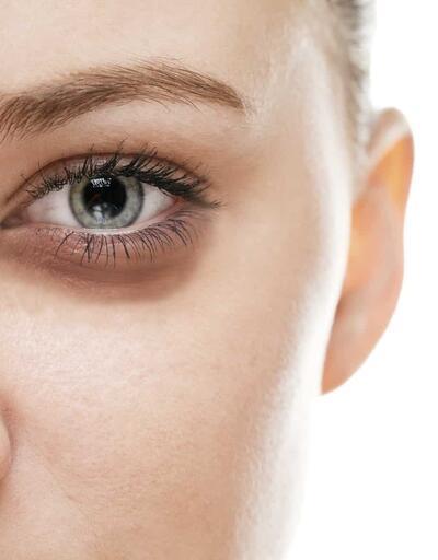 Göz Altı Morluğu Nasıl Geçer? Göz Altı Morluklarına Ne İyi Gelir?