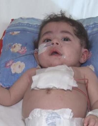 Dünyada 33, Türkiye'de 2'nci vaka' 5 aylık bebeğin kalbine Türk doktordan 'zırh'