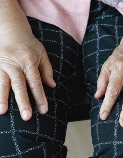 Ayakkabı veya giysiler vücudu sıkıyorsa sebebi bu hastalık olabilir! Erken dönem belirtilere dikkat