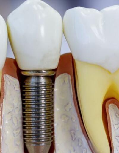 İmplant sonrası ağrı, diş çekiminden farksız