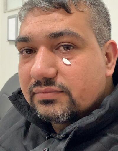Göz altındaki metal parçayı 3 yıl sonra mıknatısla fark etti