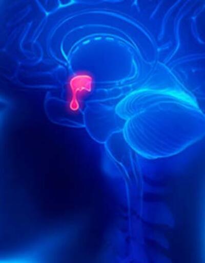 Migren ataklarını önleyecek 3 doğal tarif