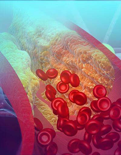 Kalbi besleyen damarlardan gelen 7 işarete dikkat