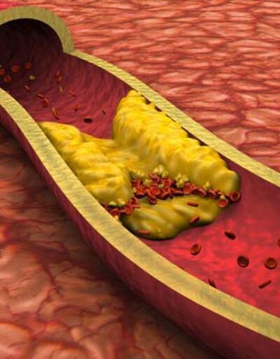Kolesterol habercisi 3 kritik belirti! Ayak bilekleri ve gözlere dikkat