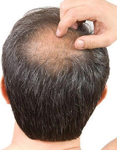 Saç ekiminde doğru bilinen yanlışlar