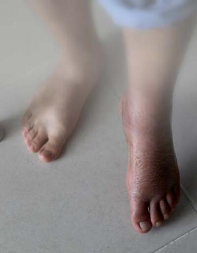 Lenfödem probleminde hangi tedavi yöntemleri uygulanmaktadır?