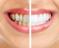 Dişlerdeki sararmalara son verem uygulama
