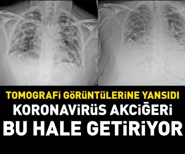Son dakika: Koronavirüs akciğeri bu hale getiriyor