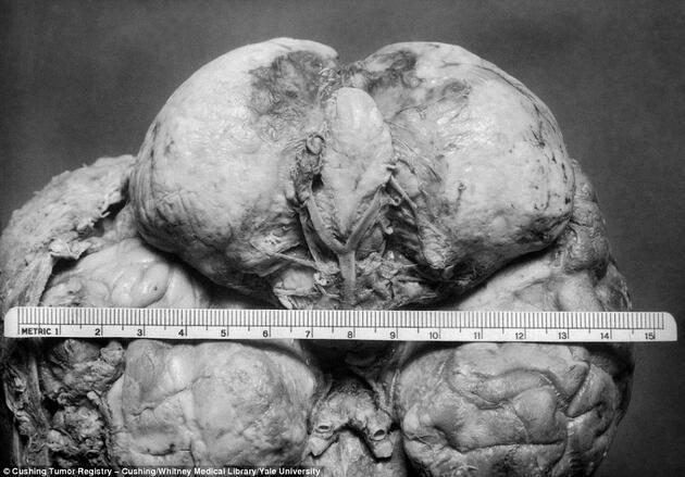 Yale Üniversitesi bodrumunda bulunan kan donduran fotoğraflar...
