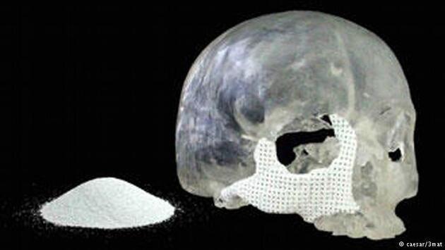 3D yazıcılar tıbbın hizmetinde