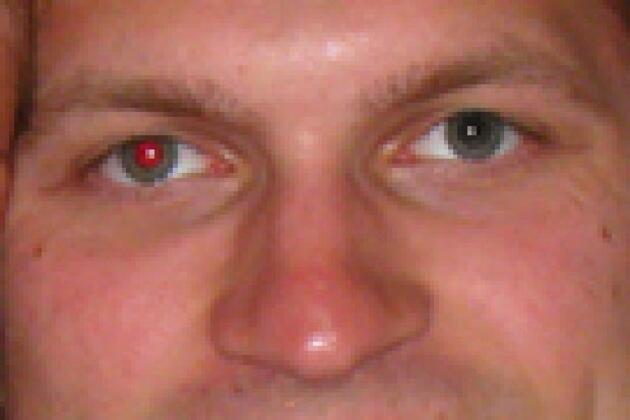 Fotoğrafta kırmızı göz sağlıklılık işareti, beyazsa dikkat