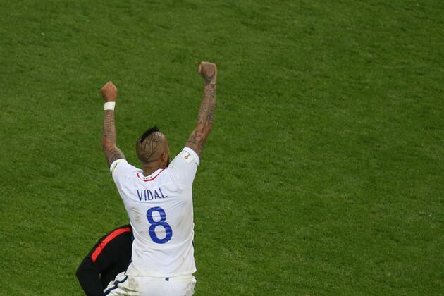 Arturo Vidal'in ilginç saç kesimi