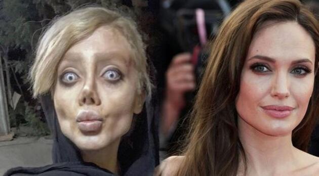 Angelina Jolie'ye benzemek istedi bu hale geldi