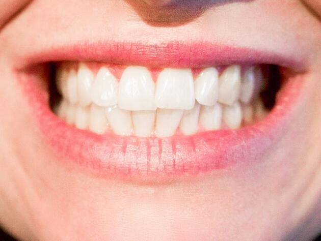 Dişlerinizi erken yaşta kaybettiren hata!