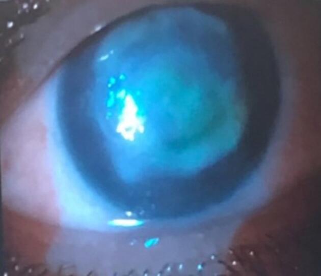 Gözünde lens ile denize girdi, kör oldu!