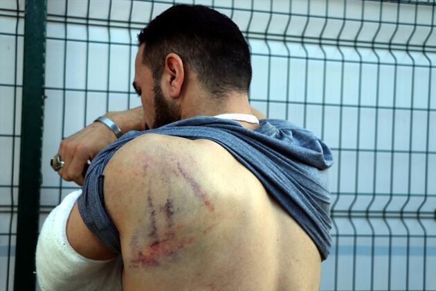 Yunanistan askeri, kaçak bir göçmenin elini kesip zorla Türkiye'ye gönderdi