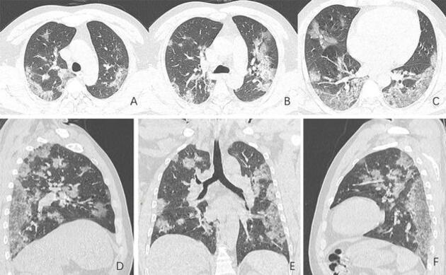 Röntgen görüntülerini paylaştılar: Koronavirüs bu hale getiriyor