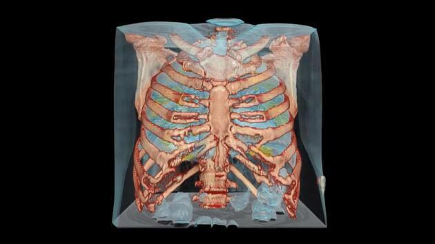 İşte koronavirüsün akciğerlerde yol açtığı hasar