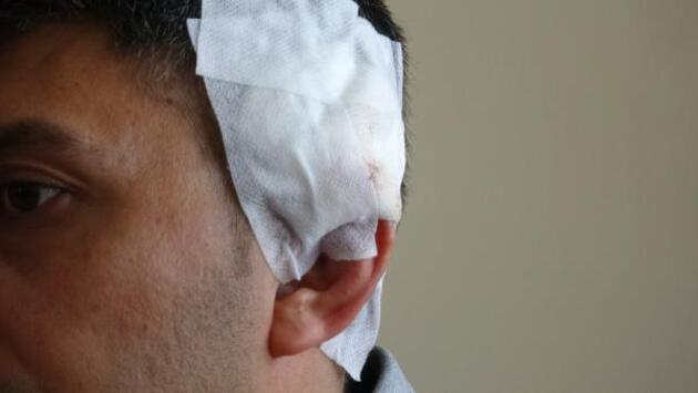 Kürekli saldırıda yaralanan komiser: Silah kullanmamakla en doğru kararı verdim