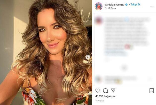Mide ameliyatı kabusa döndü: Eski Kolombiya Güzeli Daniella Alvarez'in bacağı kesildi