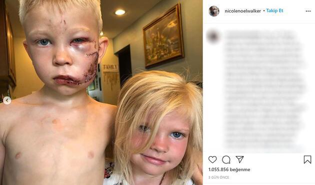 """Altı yaşındaki minik kahraman kardeşini köpek saldırısından kurtardı: """"Biri ölecekse bu ben olmalıydım"""""""