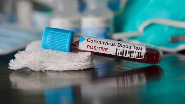 Farkında olmadan koronavirüs geçirdiğinizi anlamanın yolu