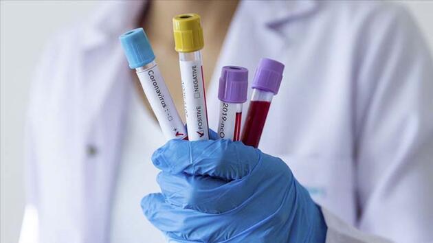 ABD'den 1 milyar dolarlık korona aşısı anlaşması