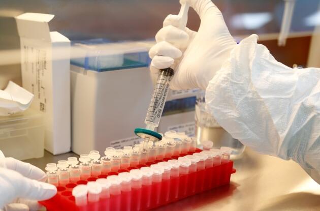 ABD'li bilim insanlarından koronavirüse karşı antikor müjdesi