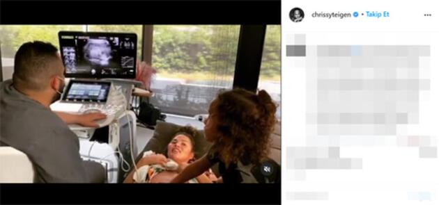 Chrissy Teigen ve John Legend'in üçüncü bebeği ölü doğuyor: ünlü çiftin acısı