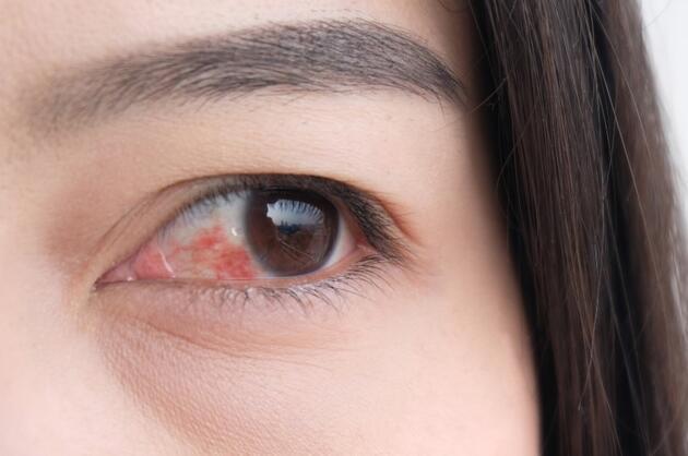 """Uzman isim """"Çok sık görülmüyor"""" diyerek uyardı: Koronavirüste 'kırmızı göz' belirtisi!"""