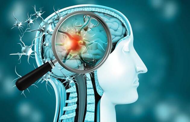 Beyinde kalıcı hasar bırakıyor! Koronavirüsü ağır geçirenlerde inme riski!