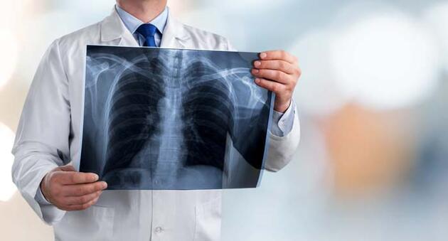 Akciğer kanserinde tedavi başarısı artıyor - Sağlık Haberleri