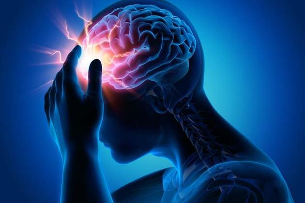 Beyin anevrizması nedir? Beyin kanamasına yol açıyor! Bu 4 kritik belirtiye dikkat